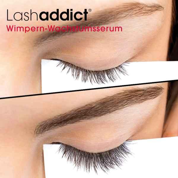 Lashaddict Eyelash Conditioning Serum 5ml